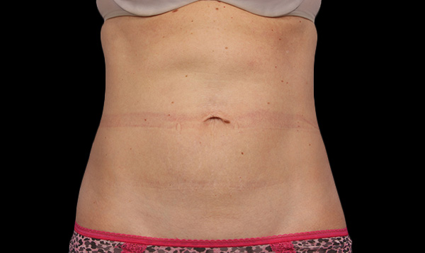 CoolSculpting La Verne Abodmen After