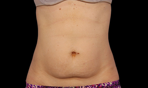 Coolsculpting Abdomen before