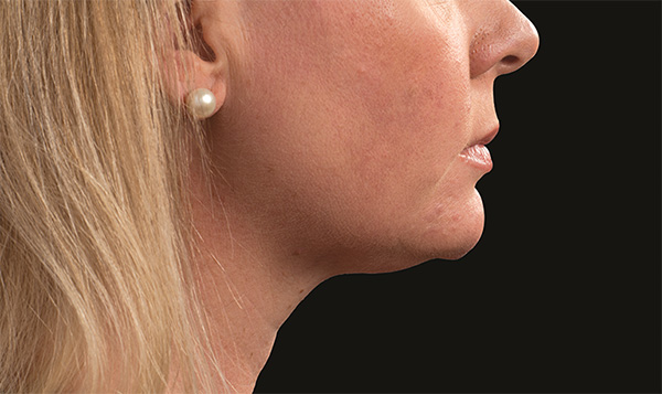 CoolSculpting Under Chin After