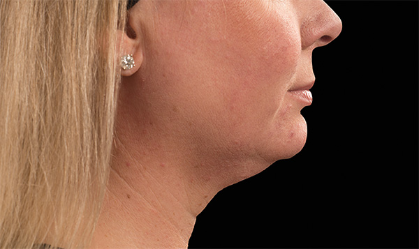 CoolSculpting Under Chin Before