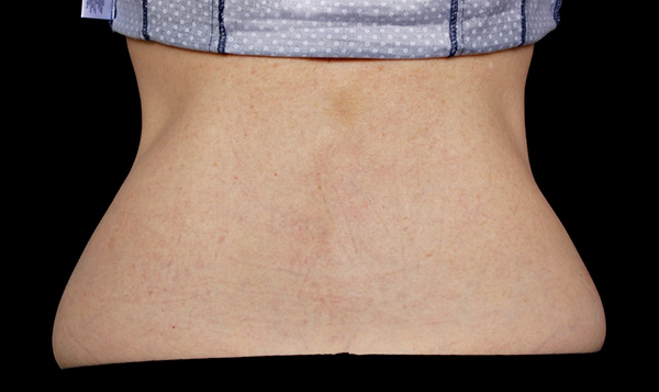 CoolSculpting Love Handles After