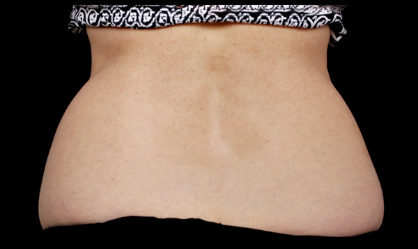 CoolSculpting Love Handles - La Verne
