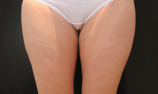 CoolSculpting Inner Thighs Before