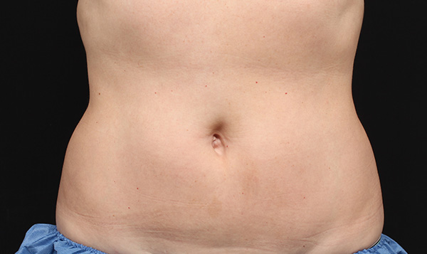 CoolSculpting Stomach After - La Verne