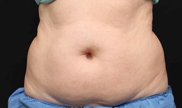 CoolSculpting Stomach Before