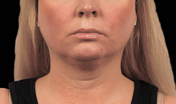 Coolsculpting Chin Before