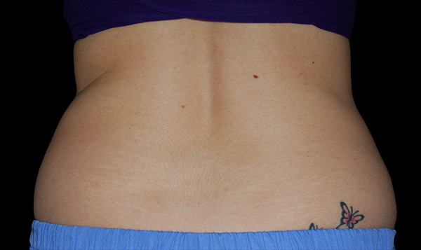 Coolsculpting Flank/Side Before