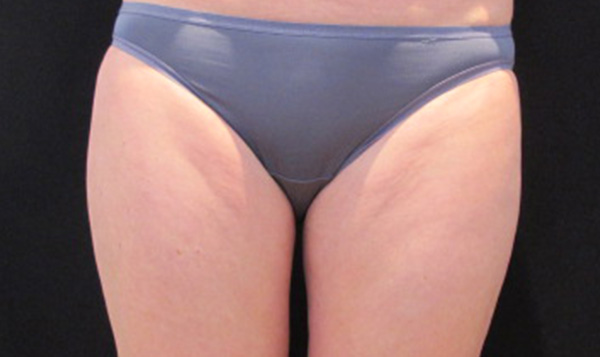 Coolsculpting Thigh after