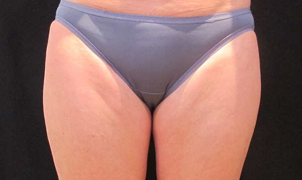 Coolsculpting Thigh Before